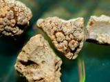 Những mảnh nhỏ của sỏi thận. Ảnh: News Scientist