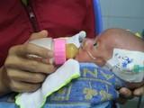 """Em bé sơ sinh mới chỉ 1,6 kg đã được cứu cống sau 2 ca phẫu thuật tim """"nghẹt thở"""""""
