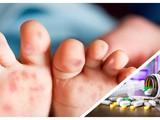 Có thông tin cho rằng thiếu thuốc điều trị bệnh tay chân miệng đang vào mùa cao điểm ở TP.HCM (Ảnh CarePlus, Hòa Bình ghép)