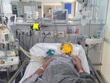 Bệnh nhân Đỗ Văn Ch. (46 tuổi, ở Tĩnh Gia, Thanh Hóa) nhập viện vào BV Bạch Mai trong tình trạng đã ngừng tim, hiện vẫn hôn mê sâu (Ảnh: BVCC)