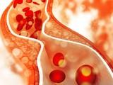 Có quá nhiều cholesterol trong máu ảnh hưởng lớn tới sức khỏe tim mạch.