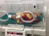 Cháu bé sinh non khi được khoảng 8 tháng và mới chỉ nặng 1,6kg.