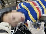Bệnh nhi người Trung Quốc được cấp cứu tại Bệnh viện đa khoa Hải Dương tối 26/1. Ảnh: Báo Hải Dương