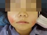 Khuôn mặt sưng tấy của người bệnh sau khi tiêm filler