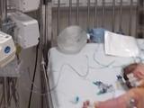 Bé gái bị sốc phản vệ sau khi uống sữa non Hàn Quốc trộn với sữa mẹ. Ảnh: Bệnh viện Nhi Trung ương