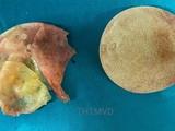 Túi ngực vỡ của chị V. được lấy ra sau 5 năm phẫu thuật nâng ngực (Ảnh - Bệnh viện Hữu nghị Việt Đức)