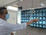 Bác sĩ xem phim chụp cộng hưởng từ sọ não của bệnh nhân bị nhiễm độc thiếc (Ảnh: Bệnh viện Bạch Mai)