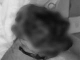 Anh H. bị mất bàn tay phải vì bình ga mini phát nổ (Ảnh: BVCC)