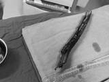Cây gỗ đâm xuyên vùng mặt của bệnh nhân (Ảnh: BVCC)
