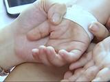 Trẻ mắc bệnh tay chân miệng có xu hướng gia tăng (Ảnh - Cục Y tế Dự phòng, BYT)