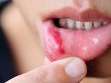 Tưởng chỉ là nhiệt miệng, nào ngờ phát hiện đang mắc ung thư lưỡi