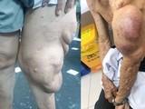 Cắt bỏ khối u sợi thần kinh khổng lồ khỏi cơ thể người đàn ông.