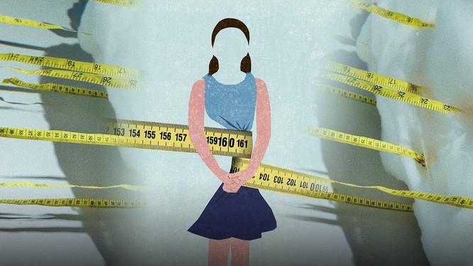 Rối loạn ăn uống đang là một đại dịch tiềm ẩn đối với phụ nữ trẻ Trung Quốc. Ảnh: Sixthtone