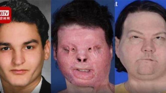 Khuôn mặt của Joe DiMeo trước khi bị tai nạn, sau khi bị tai nạn và sau khi được ghép mặt người khác (Ảnh: BTV).