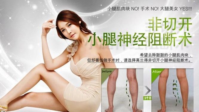 Quảng cáo phẫu thuật nội soi phong tỏa bắp chân trên mạng ở Trung Quốc (Ảnh: Sohu).