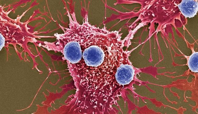 Liệu pháp mới được thông qua đột phá ở chỗ sử dụng các tế bào T đã chỉnh gen (xanh dương) để tấn công tế bào ung thư (màu đỏ) (Ảnh: Science Source)