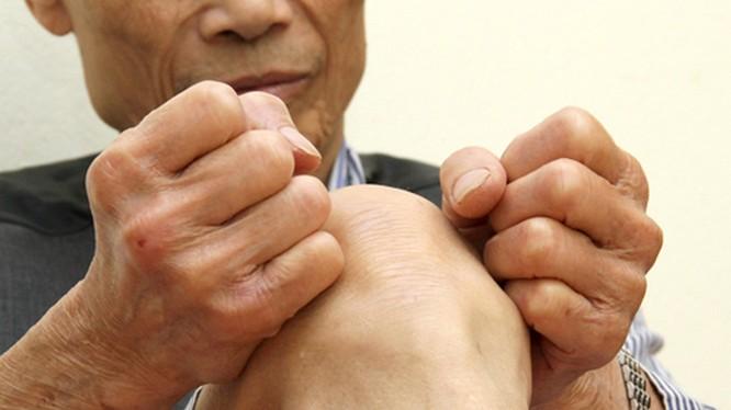 Nếu không được điều trị hiệu quả và kịp thời, bệnh đau đầu gối ở người già có thể dẫn đến những biến chứng khó lường.