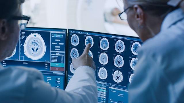 Intel cùng nhiều tổ chức nghiên cứu và chăm sóc sức khỏe trên thế giới muốn phát triển một mô hình AI đào tạo giúp phát hiện các khối u não. Ảnh: Engadget
