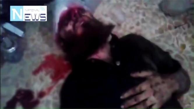 Chiến binh IS bị trọng thương