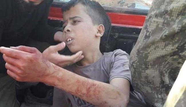 Cậu bé vị thành niên Palestine 12 tuổi, Abdallah Issa bị sát hại