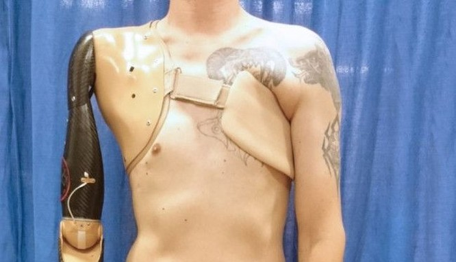 Cánh tay giả mà các đầu thu tín hiệu được kết nối với các cơ ngực