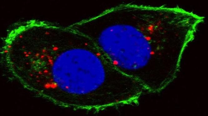 Tế bào ung thư thận (Ảnh Viện nghiên cứu ung thư quốc gia/Đại học Stanford)