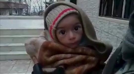 Một đứa trẻ bị suy dinh dưỡng nặng ở Madaya. Ảnh: Reuters