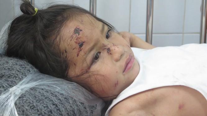 Bé Nguyễn Trần Sa Ny (5 tuổi) thoát chết trong vụ sạt lở núi nhưng trầy xước khắp người. Ảnh: Xuân Hiển