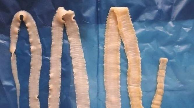 Mẫu sán dây của Viện sốt rét - Ký sinh trùng - Côn trùng TP Hồ Chí Minh