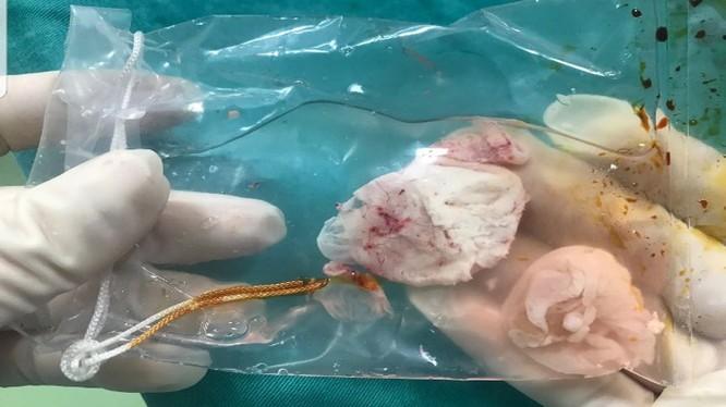 Nang sán làm tổ trong não bệnh nhân