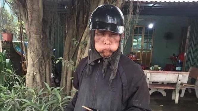 Một người ăn xin mặc đồ đen, mặt biến dạng bị người dân chụp ảnh.