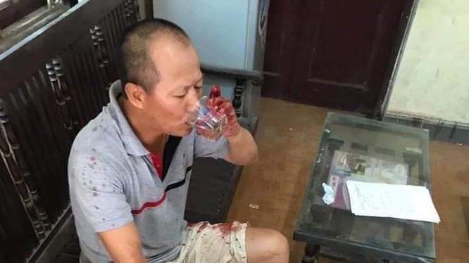 Chủ tịch xã Hồng Hà cho biết, trước khi sự việc xảy ra, Nguyễn Văn Đông không có tiền án, tiền sự.