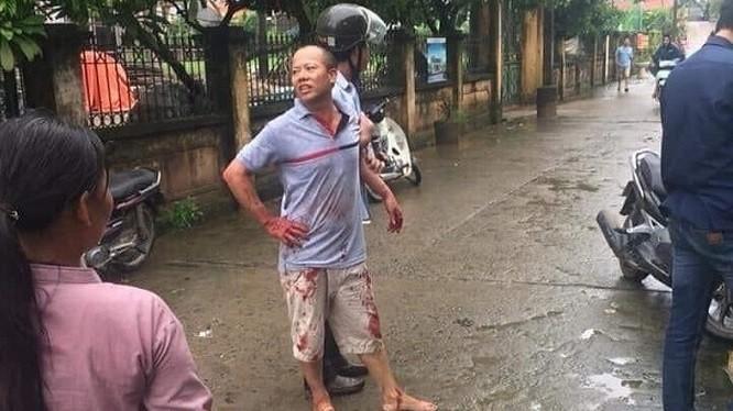 Kẻ gây án Nguyễn Văn Đông bị lực lượng chức năng bắt giữ.