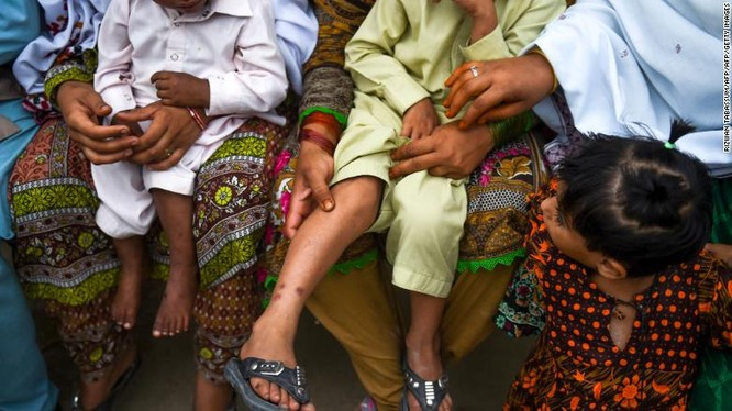 Những trẻ em bị nhiễm HIV ở ngôi làng Wasayo, thành phố Ratodero được mẹ cho đi khám (Ảnh: CNN)