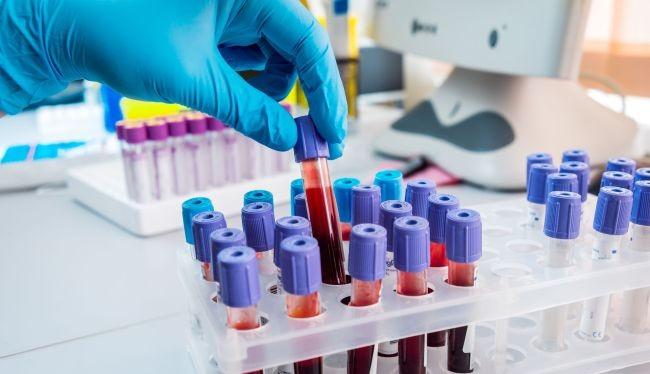 Hiện có hơn 100 loại bộ xét nghiệm kháng thể COVID-19 trôi nổi trên thị trường Mỹ (Ảnh: Live Science)