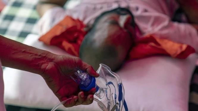Thiếu giường bệnh và nguồn cung oxy khiến tình hình dịch COVID-19 ở Ấn Độ hết sức nghiêm trọng (Ảnh: Bloomberg)