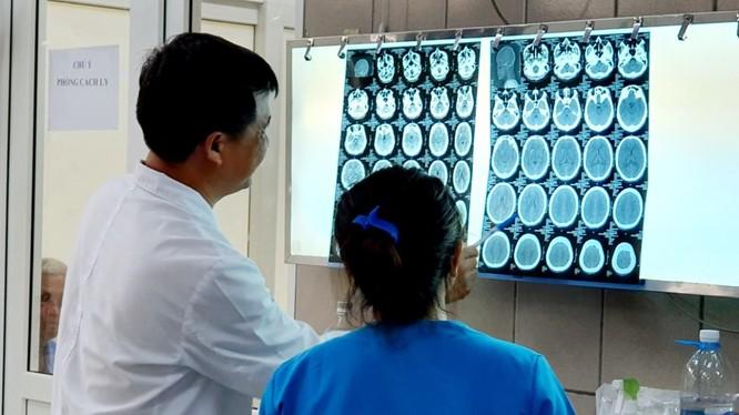 Hình ảnh phim chụp não bệnh nhân bị xuất huyết do ngộ độc ma túy đá