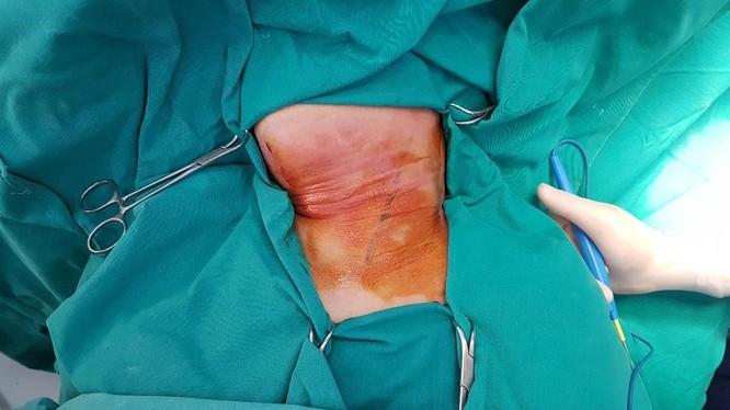 Hình ảnh tổn thương của bệnh nhân. Ảnh: Bệnh viện cung cấp