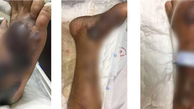 Chân của bệnh nhân bị nhiễm trùng máu nặng do loài vi khuẩn lạ (Ảnh: BVCC)