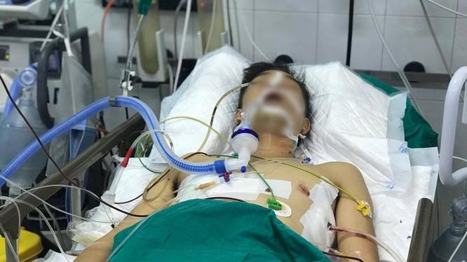Bệnh nhân được điều trị tại Bệnh viện Hữu nghị Việt Đức với nhiều vết thương phức tạp (Ảnh: BVCC)