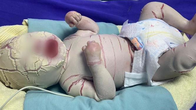 Bé trai sinh non 34 tuần bị mọc sừng khắp cơ thể (Ảnh: Bệnh viện Sản Nhi Quảng Ninh)
