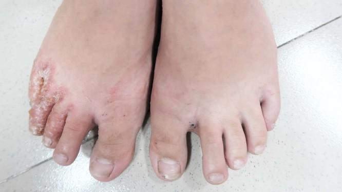Bệnh nhân bị nấm chân (Ảnh: BS. Lê Thị Mai)