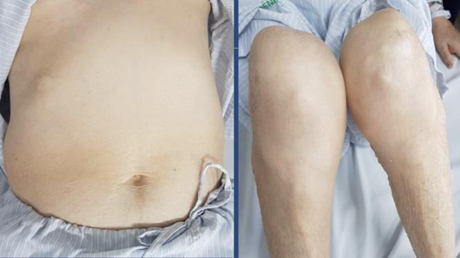 Bệnh nhân bị teo cơ tứ chi, béo bụng, rạn da vùng bụng, da mỏng, dễ xuất huyết vì lạm dụng corticoid để trị đái tháo đường. (Ảnh: BVCC)