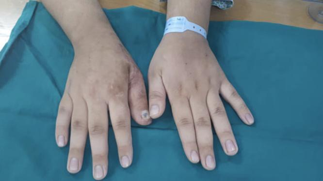 Bàn tay của bệnh nhân sau phẫu thuật (Ảnh: BVCC)