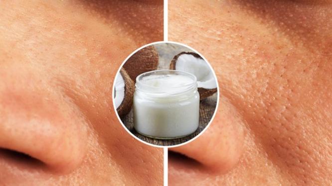 Bôi dầu dừa thay vì kem dưỡng ẩm có thể gây bít lỗ chân lông (Ảnh: BrightSide)