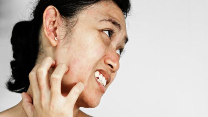 Tẩy da chết không đúng cách có thể khiến da bị tổn thương (Ảnh: Boldsky)