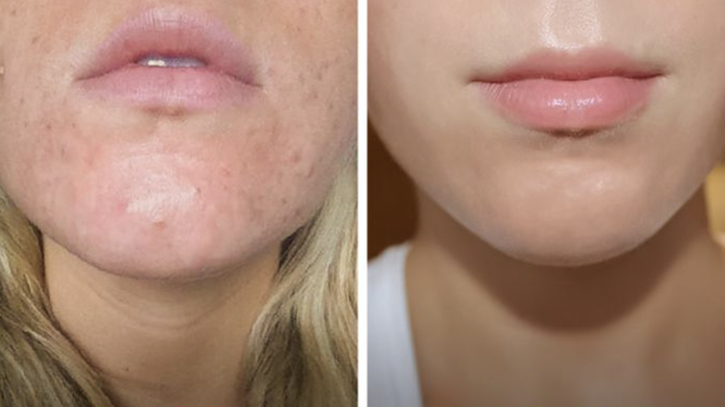 Rửa mặt ít nhất 60 giây giúp chị em có một làn da trắng mịn (Ảnh: Brightside)