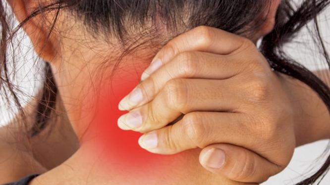 Dân văn phòng thường xuyên bị đau cổ vì thói quen làm việc (Ảnh: BrightSide)