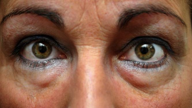"""Mắt """"gấu trúc"""" khiến sắc đẹp của chị em bị xuống cấp (Ảnh: Brightside)"""