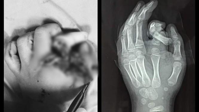 Ngón tay bé trai bị đứt rời vì cho tay vào máy giặt (Ảnh: BVCC)